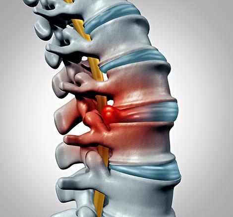 illustration of Disk-herniation